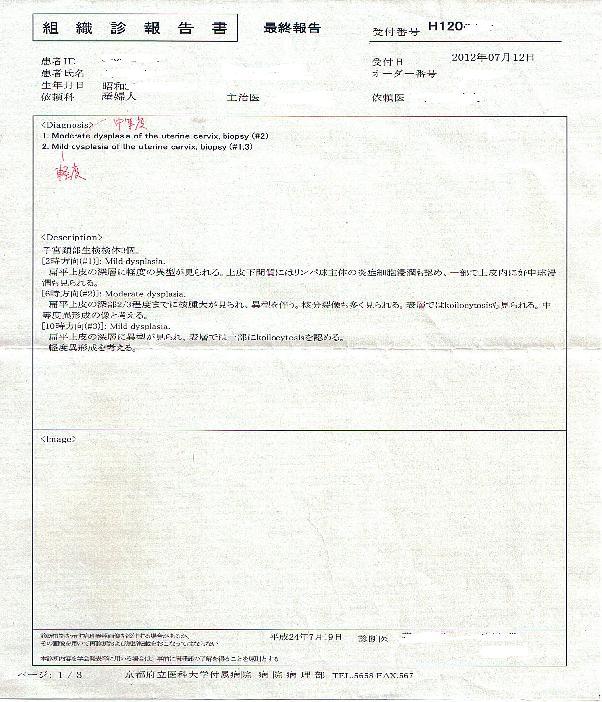 子宮頸がん 011a.JPG